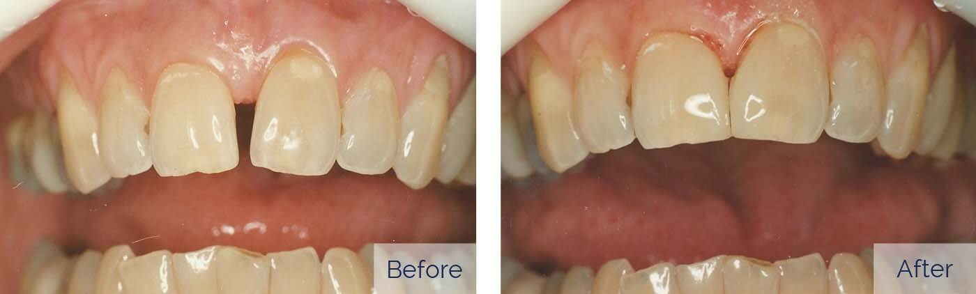 "Problem: large gap between front teeth Treatment: resin composite (""white filling"")"