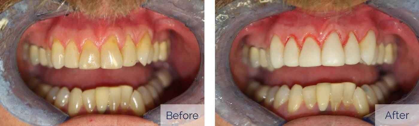 Problem: discolored teeth, receding gums Treatment: resin veneers