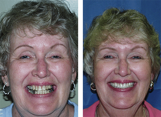 Partial dentures, porcelain veneers and white fillings completed to replace mercury fillings, fill in spaces, improve function, and color.