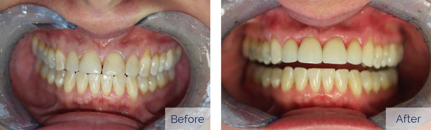 Porcelain Veneers 4
