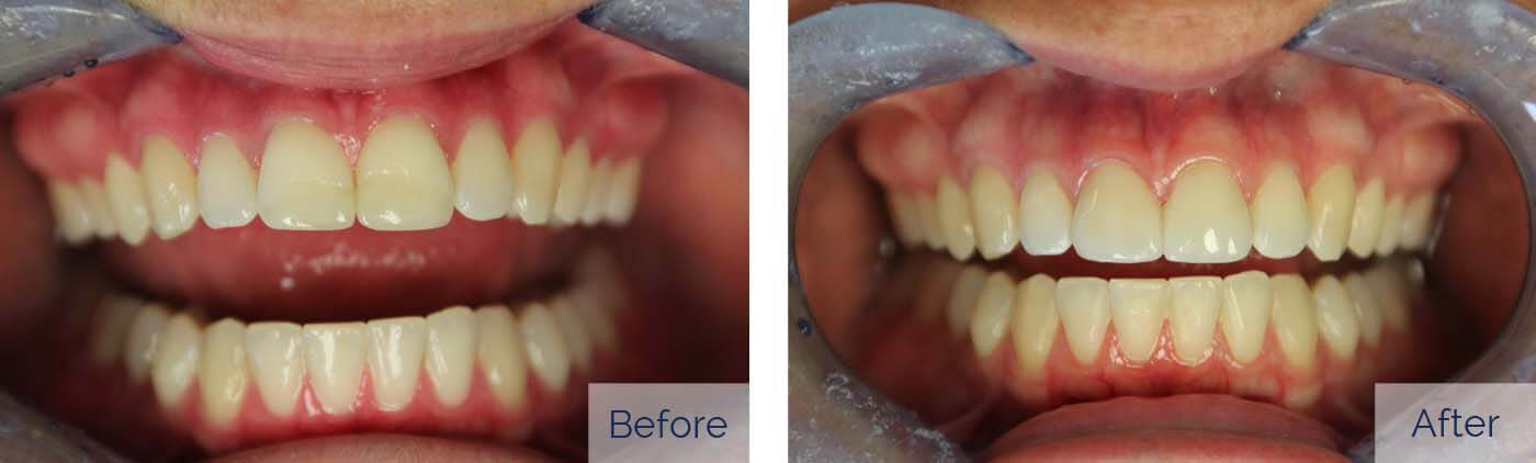 Porcelain Veneers 5