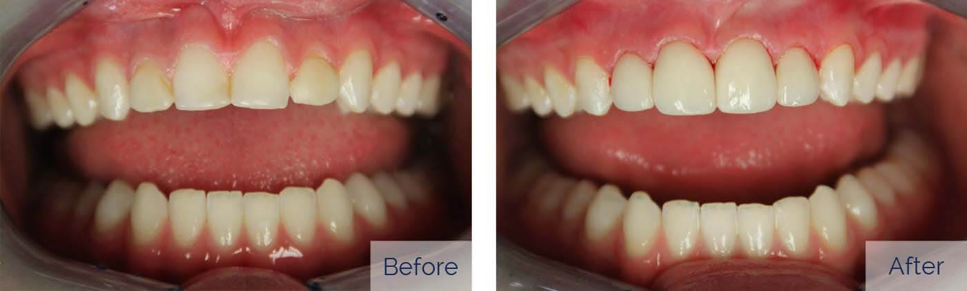 Porcelain Veneers 6