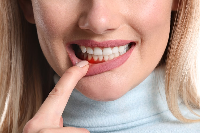 Blonde haired woman shows off infected and inflamed gums